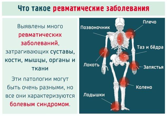 Лечение ревматоидного артрита (ревматизма) при помощи диеты