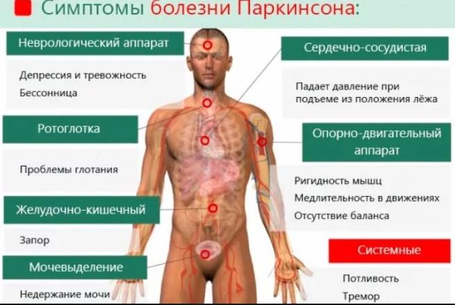 болезни Паркинсона симптомы