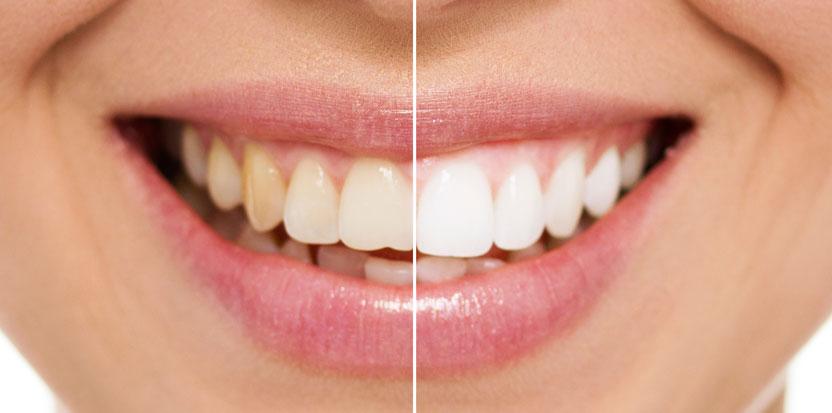 Лазерное отбеливание зубов Zoom 4 — обзор и отзывы | Семья и Здоровье