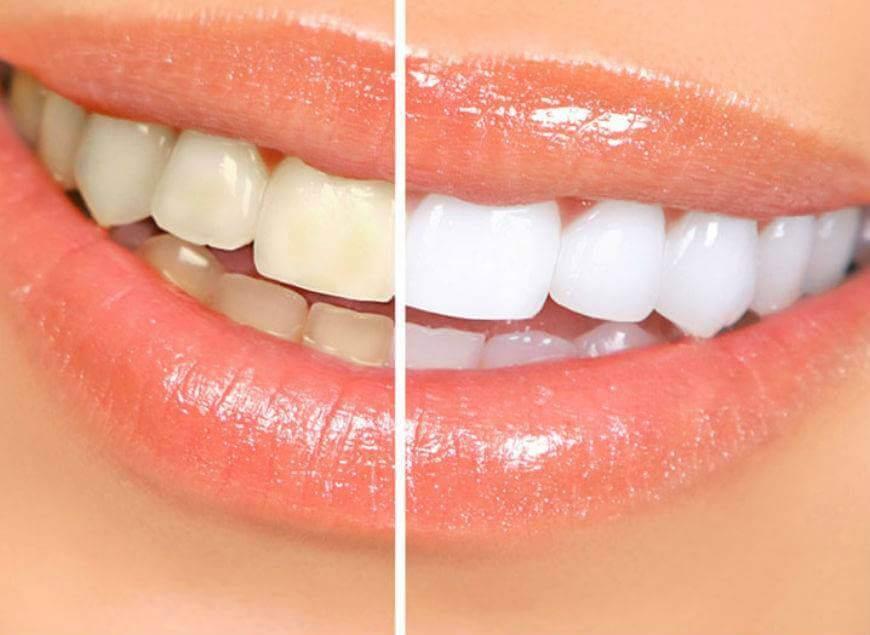 отбеливания зубов Zoom 4