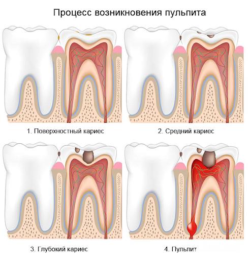Что такое пульпит зуба фото развития