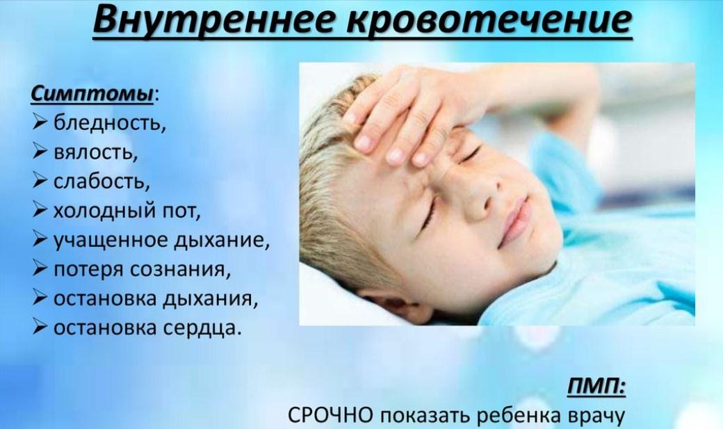 Внутреннее кровотечение у ребенка