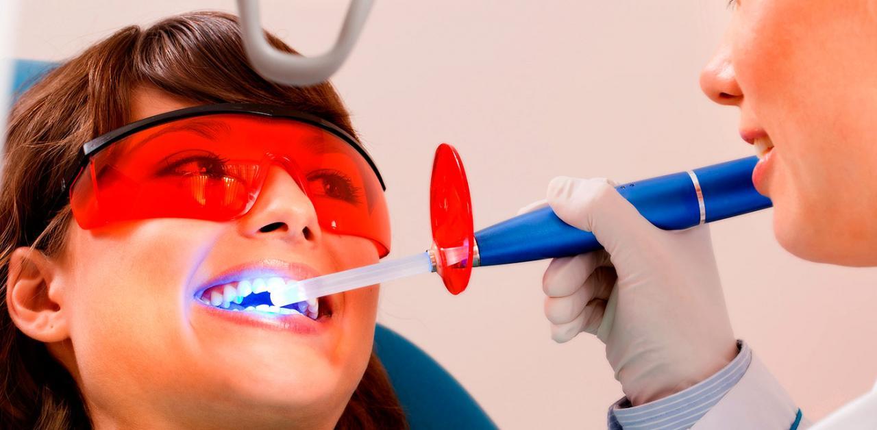 Отбеливание зубов дома или в стоматологии