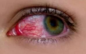 Туберкулезное поражение глаз