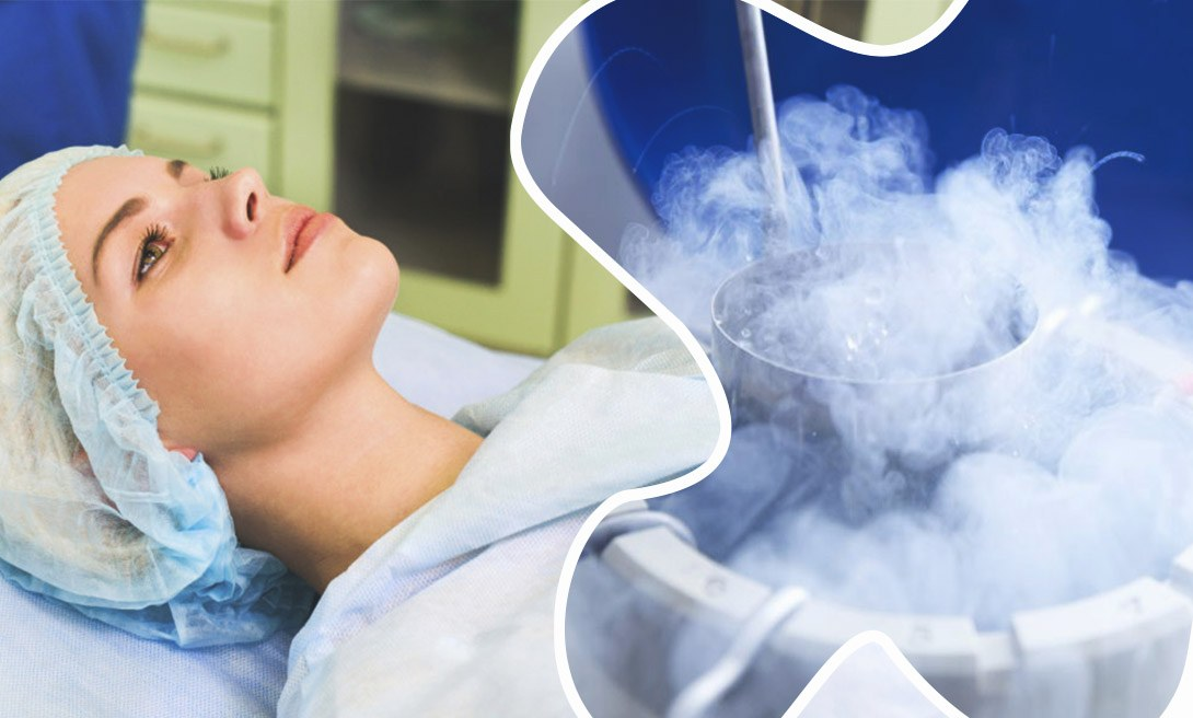 Процедура замораживания яйцеклеток