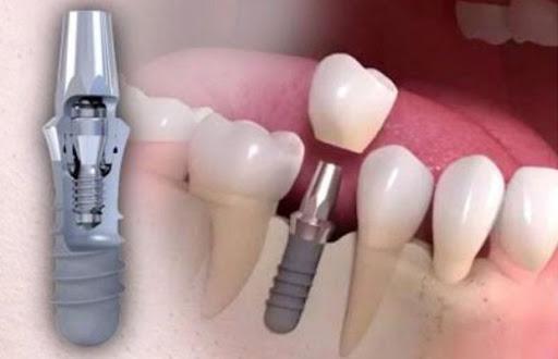 Зубные имплантаты Straumann конструкция