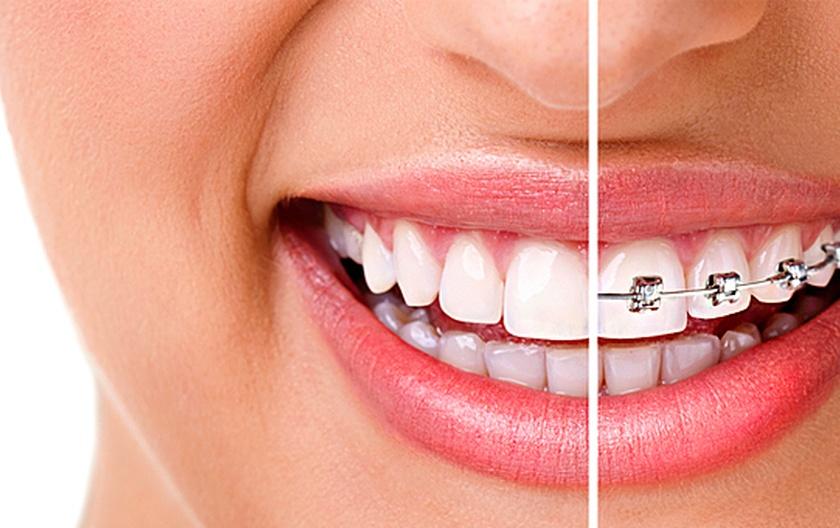 Когда стоит обратиться к ортодонту